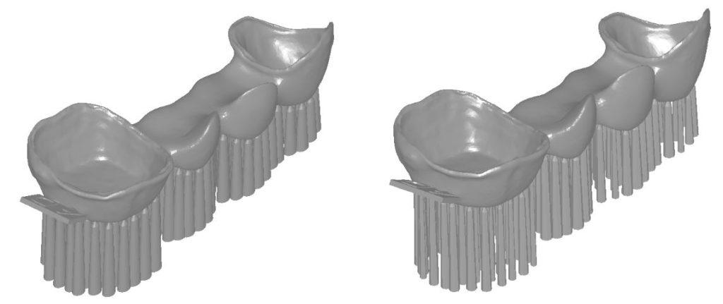 Diseño dental 3D