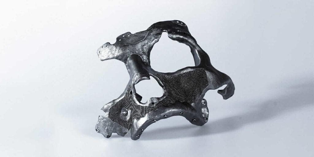 Prótesis titanio